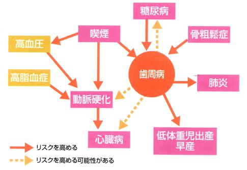 歯周病と生活習慣病の関係/広島市 歯医者 歯科