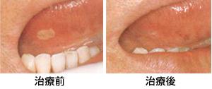 口内炎の治療/広島市 歯医者 歯科