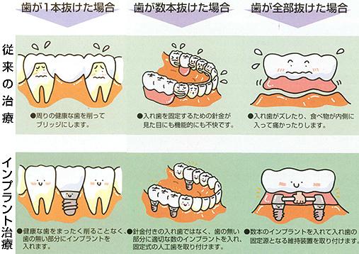 従来の治療とインプラント治療の比較/広島市 歯医者 歯科