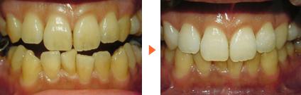ホワイトニング施術前後写真/広島市 歯医者 歯科