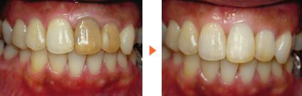ウォーキングブリーチ法施術前後写真/広島市 歯医者 歯科
