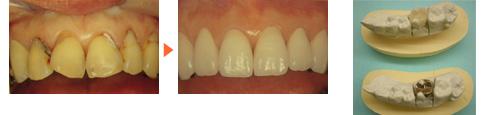 セラミックの詰め物施術前後写真と比較/広島市 歯医者 歯科