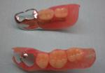 部分義歯/広島市 歯医者 歯科