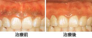 歯茎の黒ずみ/広島市 歯医者 歯科